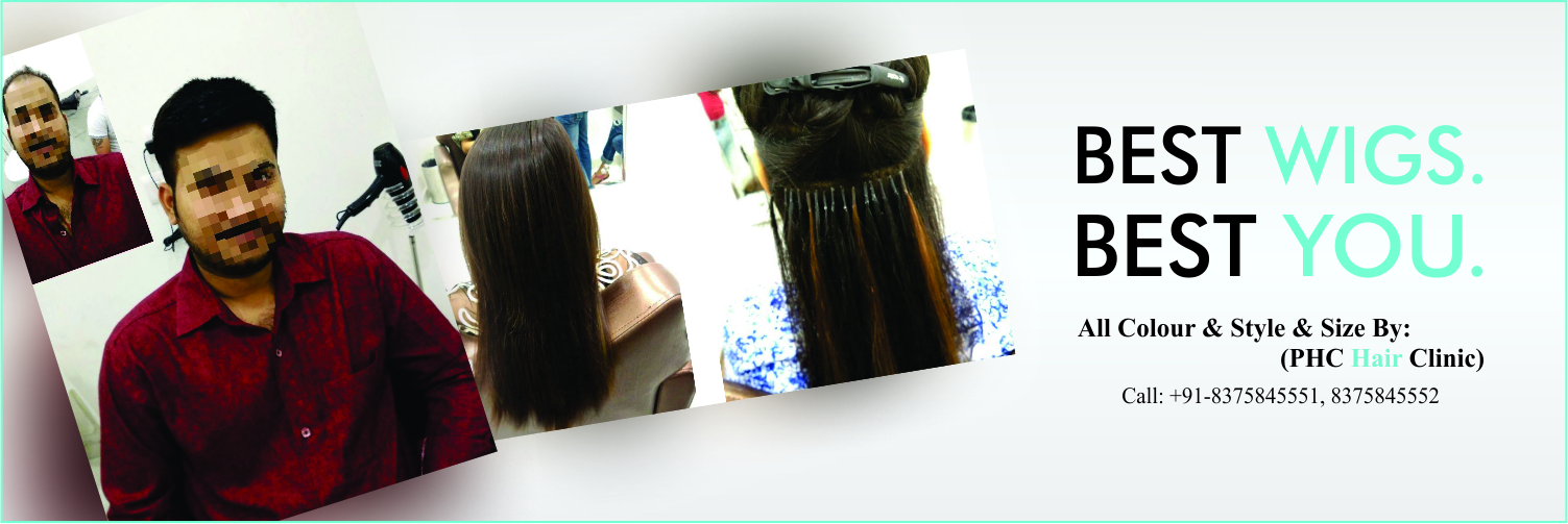 Best Wigs in Delhi -- PHC Hair Clinic