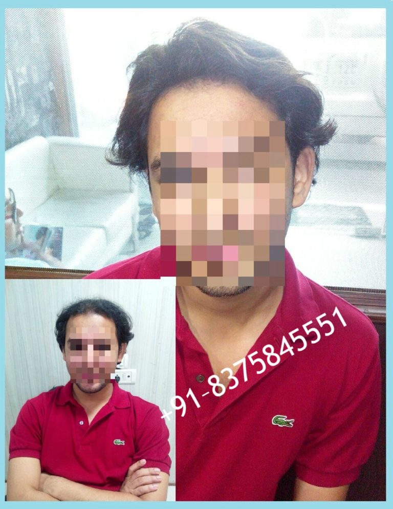 Hair Bonding in Noida