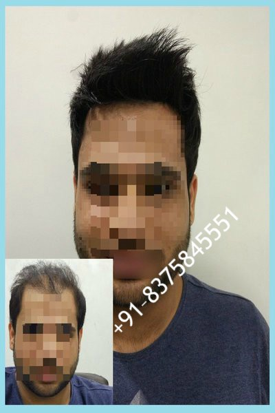 Hair Fixing in Gurgaon