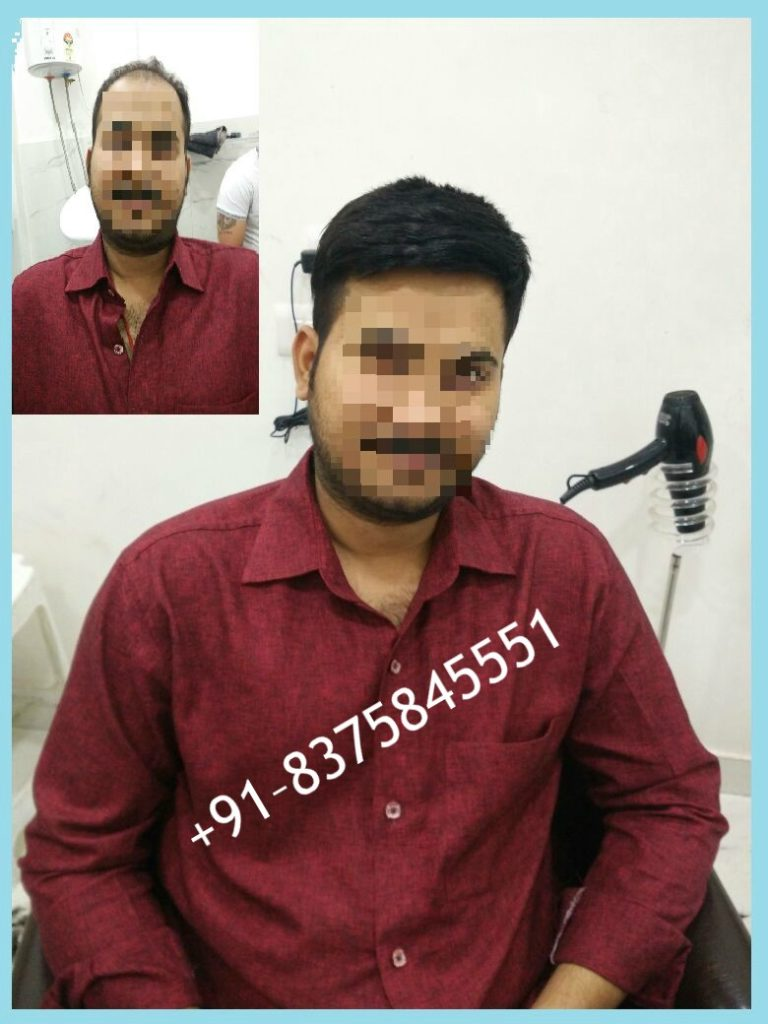 Hair Patch in Gurgaon