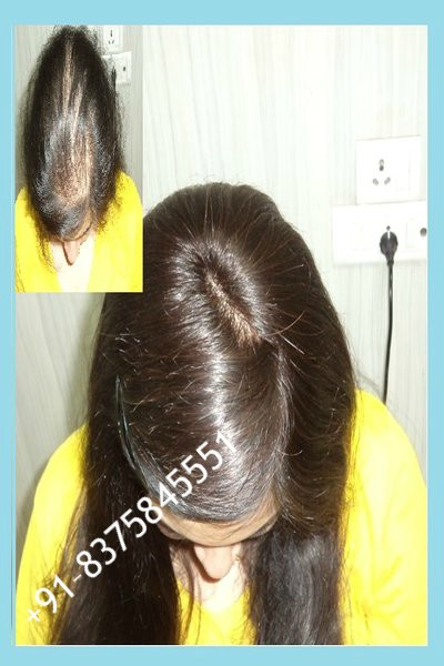 Non Surgical Hair Replacement in Delhi