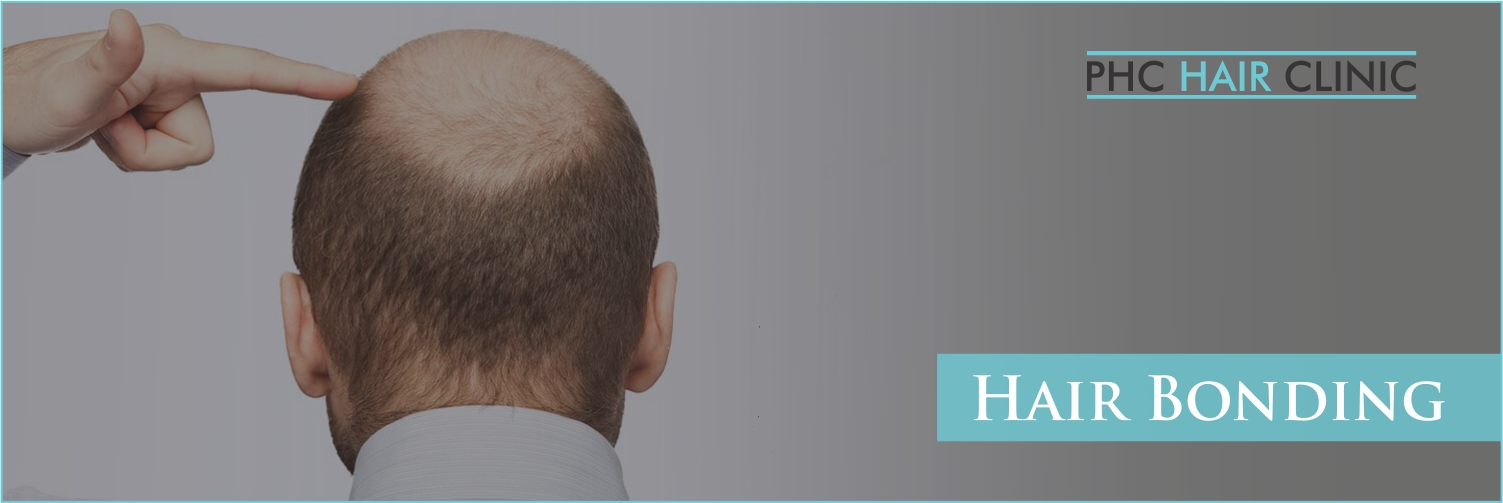 Hair Bonding in faridabad - PHC Hair Clinic